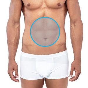 Depilación láser de abdomen