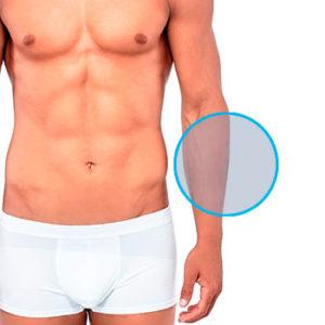 Modelo con dos círculos indicando la zona de depilación láser masculina de brazos