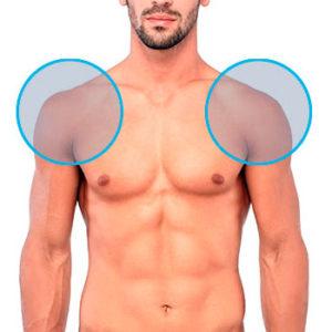 Modelo con dos círculos en los hombros indicando la zona de depilación láser masculina